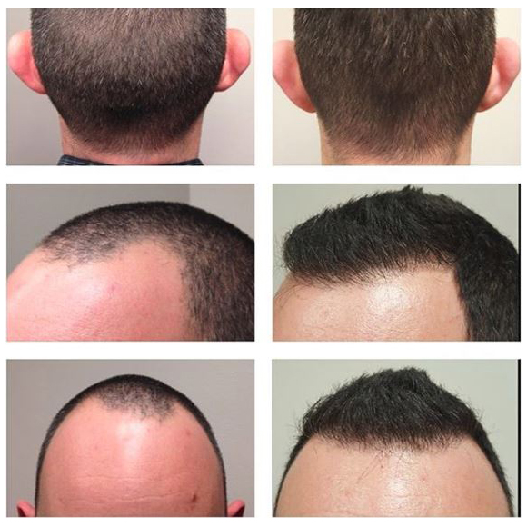 treatment of thinning hair on male patient with FUT