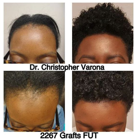 African American woman's hairline restoration after 10 months and FUT treatment