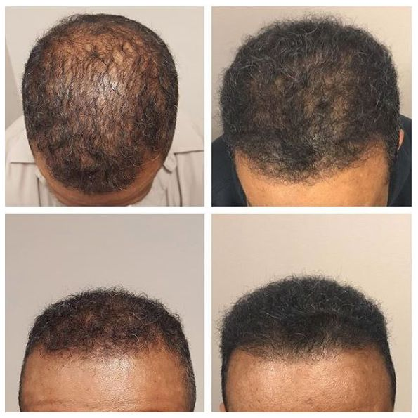 African American hair restoration with manual FUE grafts