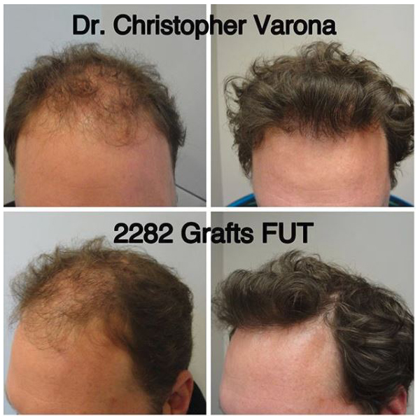 treatment of miniaturized hair with FUT graft on male patient