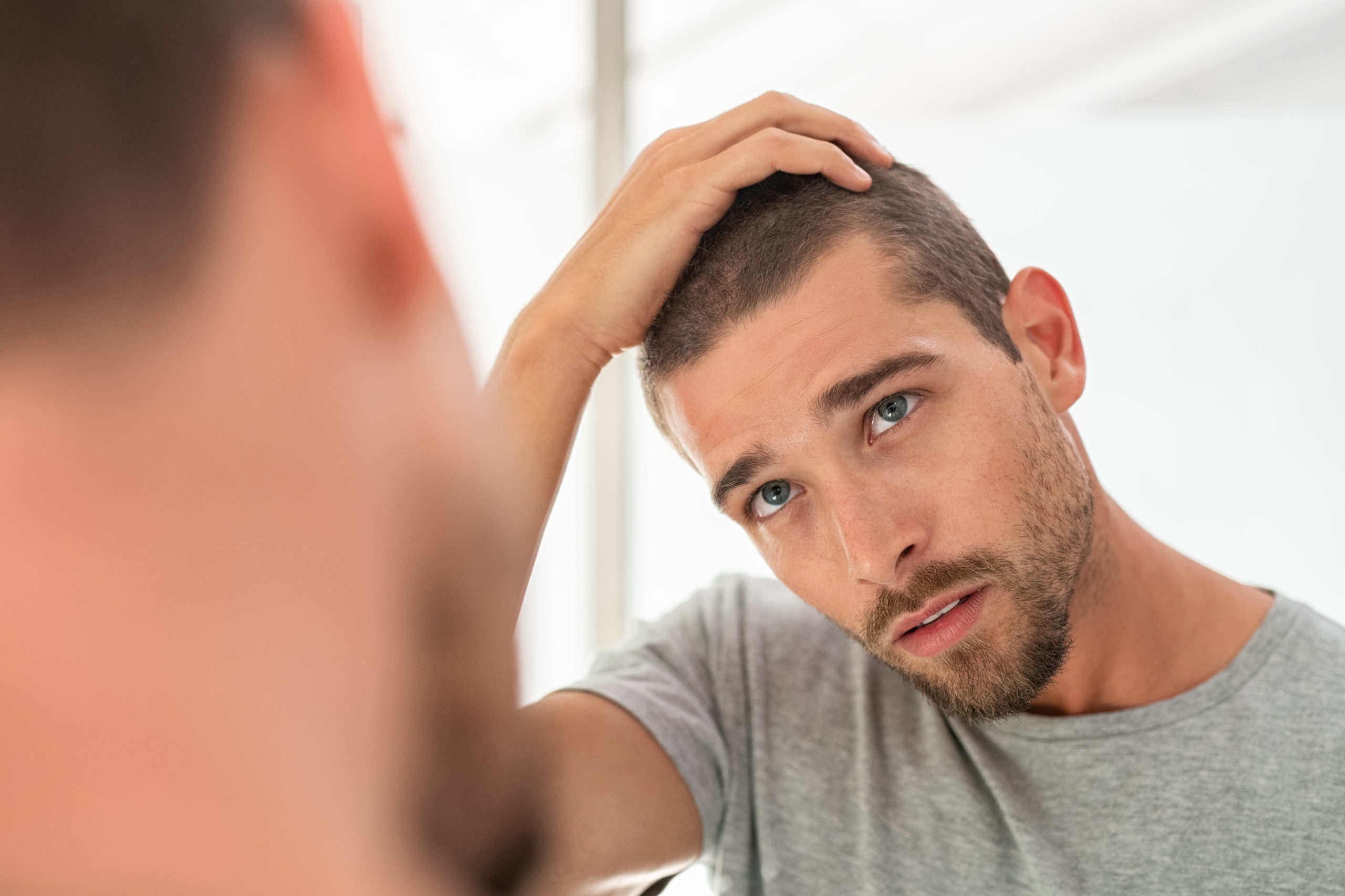 effects of hair loss